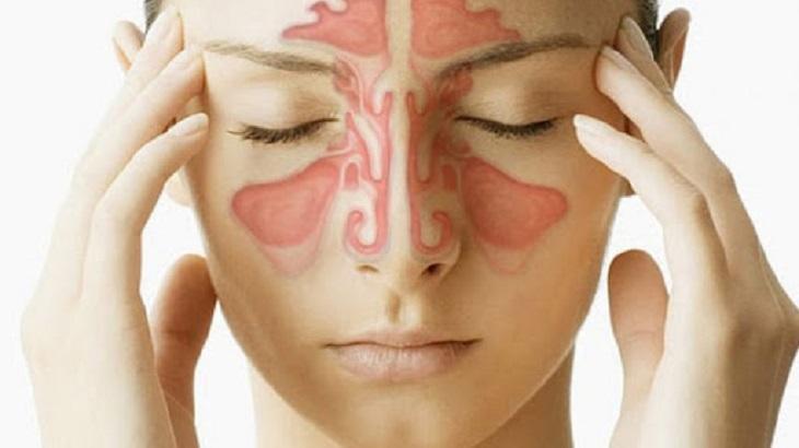 Viêm xoang mãn tính là tình trạng các xoang quanh mũi bị viêm và phù nề kéo dài từ 12 tuần trở lên
