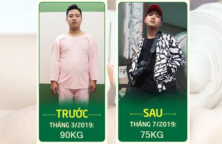 cấy chỉ giảm béo Phan Thành Trung