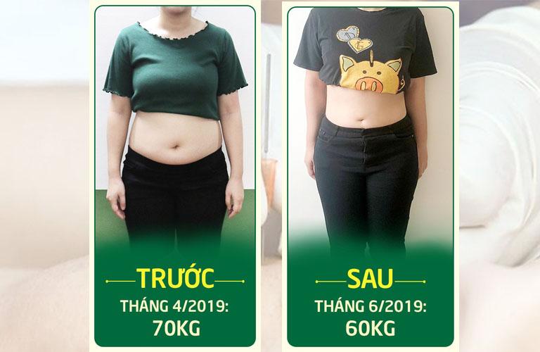 cấy chỉ giảm béo