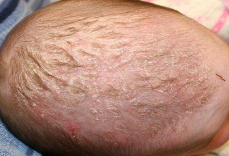 Vảy nến da đầu khiến trẻ bị nổi mẩn đỏ