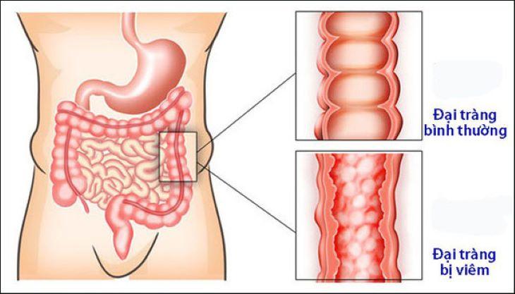 Viêm đại tràng là một trong những nguyên nhân phổ biến gây ra bệnh phình đại tràng ở người lớn