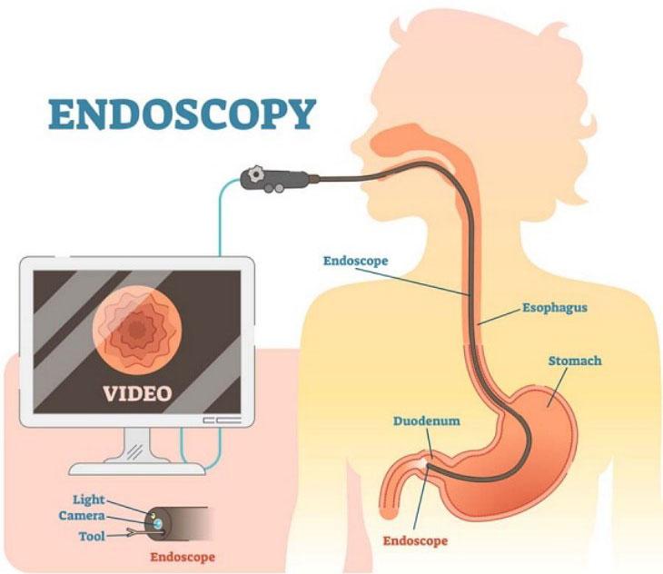 Quy trình thực hiện nội soi dạ dày có sinh thiết