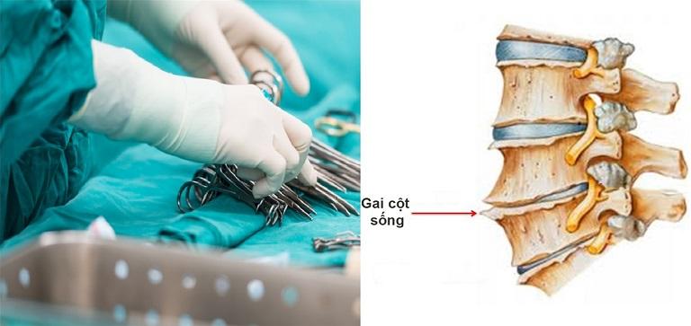 Phẫu thuật là được chỉ định trong phác đồ điều trị thoái hóa cột sống giai đoạn 4