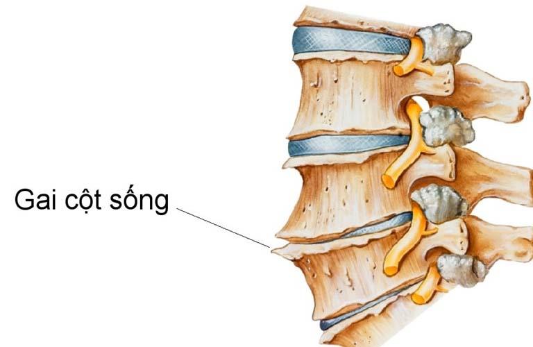 Thoái hóa cột sống gây hình thành gai xương