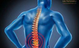Thoái hóa cột sống lưng có nguy hiểm không? Điều trị như thế nào?