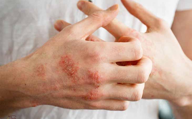 Cần điều trị sớm tránh lây lan