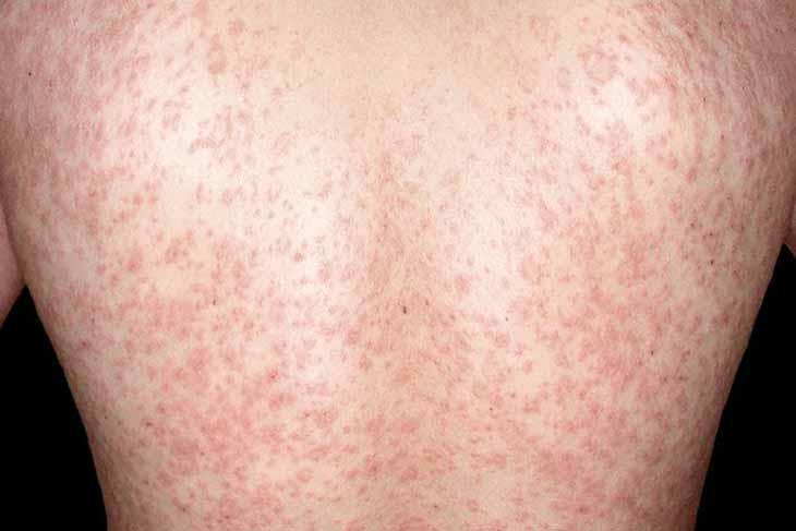 Vảy phấn hồng gibert lây lan ra các vùng khác trên cơ thể