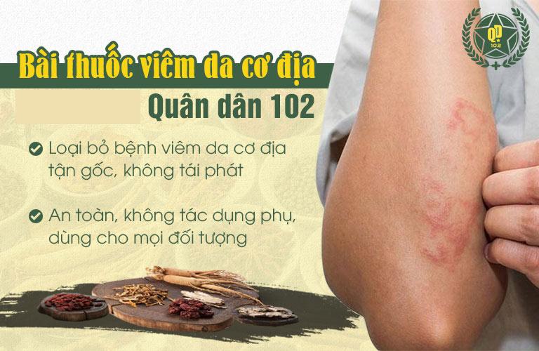 Bài thuốc Quân dân 102 có khả năng loại bỏ viêm da cơ địa từ gốc đến ngọn, an toán, không tái phát
