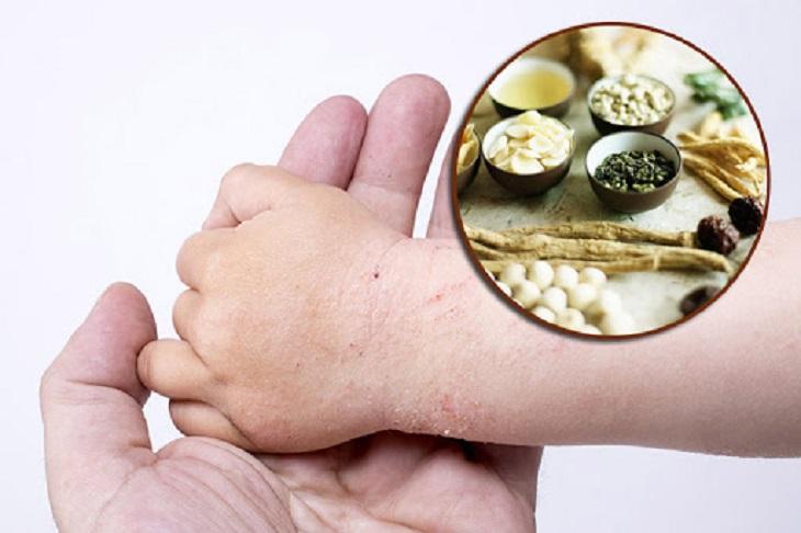 Thuốc đông y giúp đẩy lùi tình trạng bội nhiễm, phục hồi làn da
