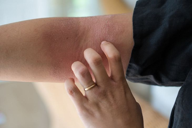 Bệnh viêm da cơ địa sau sinh