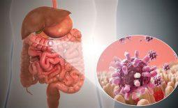 Viêm dạ dày ruột cấp do nhiễm trùng