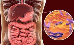 Viêm dạ dày HP âm tính: Nguyên nhân, cách điều trị và phòng bệnh hiệu quả