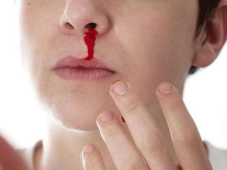 Viêm xoang cấp gây chảy máu nếu không được điều trị kịp thời sẽ gây ra các biến chứng nguy hiểm