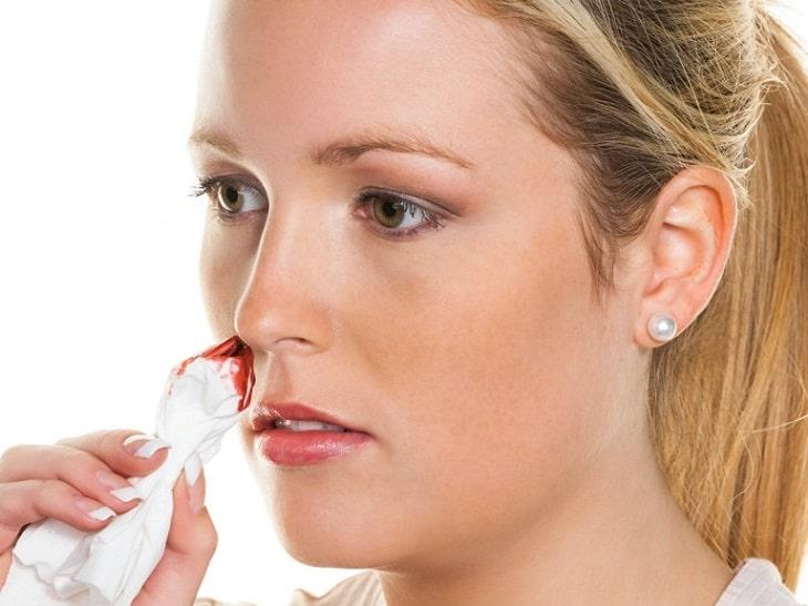 Một số nguyên nhân thường gặp gây ra tình trạng viêm xoang cấp chảy máu mũi
