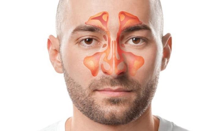 Viêm xoang hàm cấp gây ra các triệu chứng ảnh hưởng không nhỏ đến chất lượng cuộc sống và đời sống sinh hoạt của người bệnh