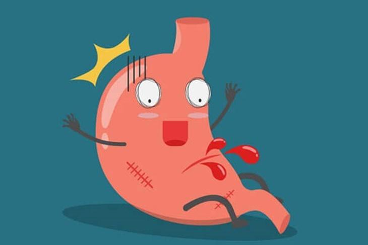 Xuất huyết dạ dày có thể gây nguy hiểm tính mạng nên cần được điều trị sớm