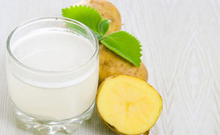 Nước ép khoai tây giảm xuất huyết dạ dày