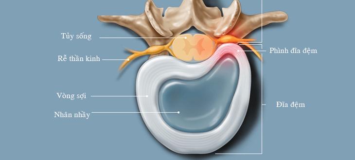 Phồng đĩa đệm có thể gây nhiều biến chứng nguy hiểm trong đó có liệt vĩnh viễn