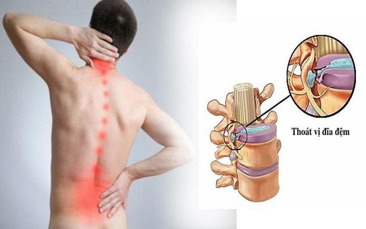 Thoát vị đĩa đệm chữa được không phụ thuộc vào mức độ nghiêm trọng của bệnh