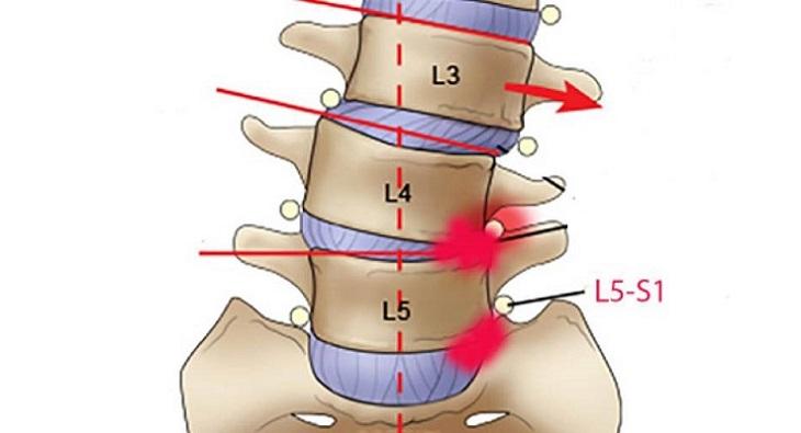Thoát vị đĩa đệm L5 S1 có thể làm khởi phát nhiều vấn đề nguy hiểm trong đó có bại liệt vĩnh viễn