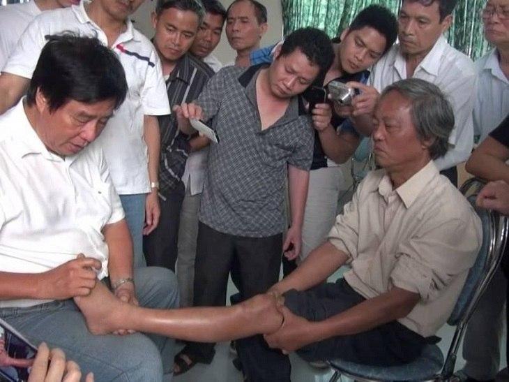 Bác sĩ Dư Quang Châu mở nhiều khóa đào tạo, truyền dạy phương pháp chữa thoát vị đĩa đệm