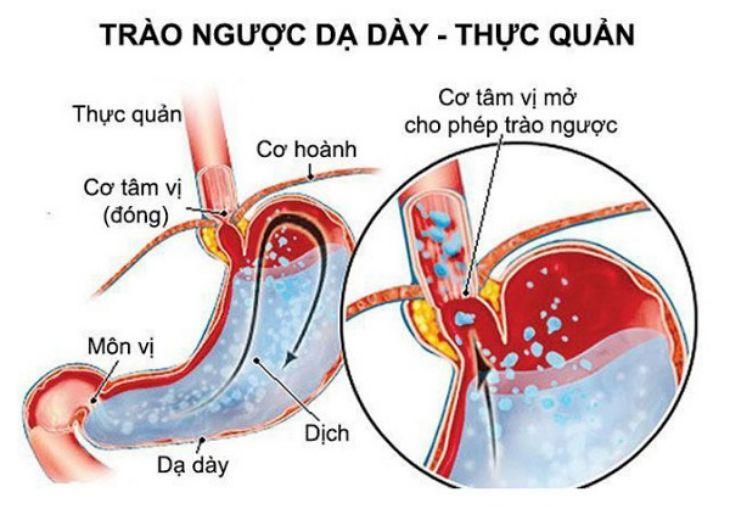 Ợ chua nôn ra máu do trào ngược dạ dày