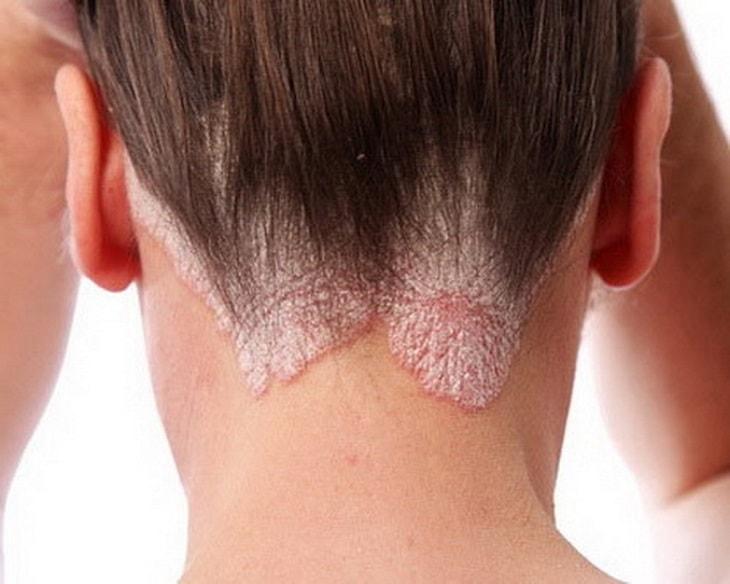 Á sừng da đầu là một thể của bệnh á sừng và là một loại bệnh viêm da cơ địa khá phổ biến