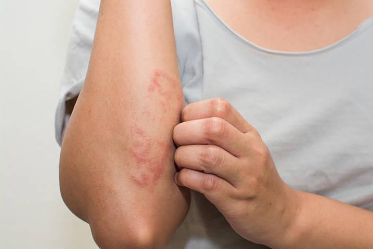 Có nhiều nguyên nhân dẫn đến bệnh á sừng ở bà bầu