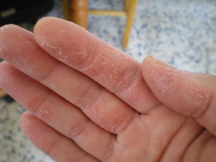Người bệnh xuất hiện những mảng da tay sần sùi, bong tróc và rớm máu