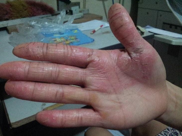 Bệnh á sừng ở tay là bệnh lý da liễu, còn được gọi tên là tình trạng viêm da cơ địa ở tay hoặc là bệnh Eczema