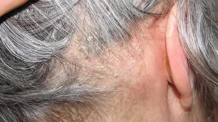 Nếu không điều trị kịp thời thì bệnh gây ra các biến chứng gây hại cho cơ thể
