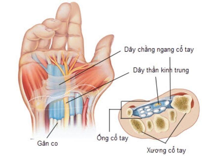 Bị tê tay khi ngủ là bệnh gì? Có nguy hiểm không?