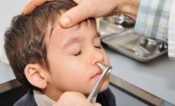 Để áp dụng cách chữa viêm xoang cho trẻ em, cha mẹ cần đưa trẻ đến bệnh viện để thăm khám và chẩn đoán bệnh