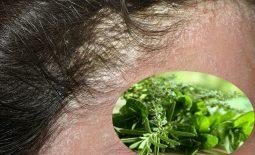 Lá lốt trị vảy nến da đầu