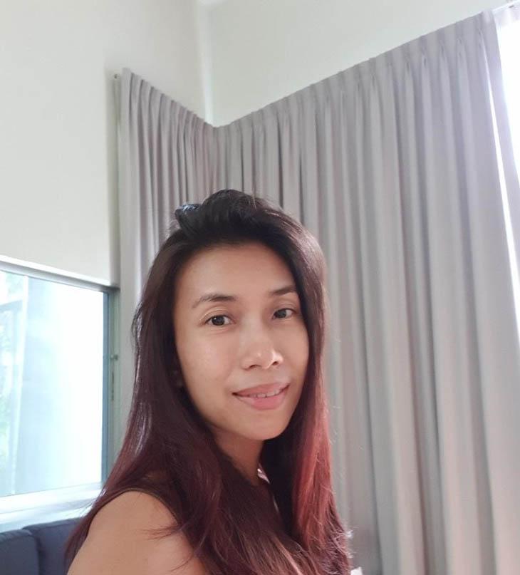 Chị Nguyễn Thị Hạnh (35 tuổi) mắc viêm amidan mãn tính nhiều năm