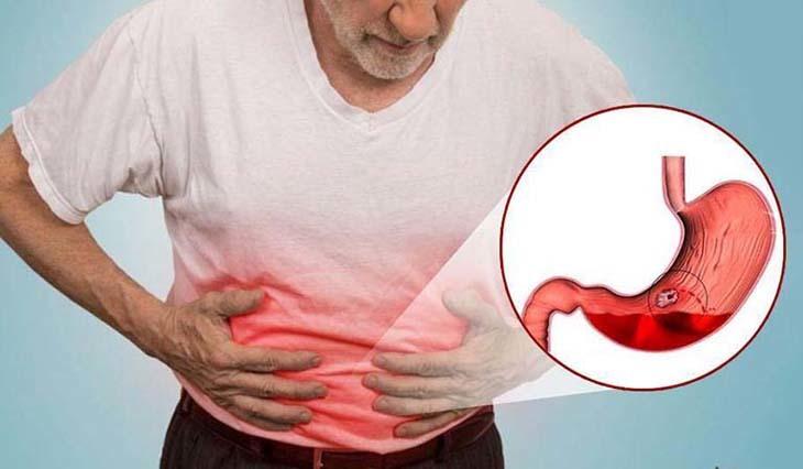 Tinh bột nghệ giúp cải thiện chức năng hệ tiêu hóa chữa viêm loét, đau dạ dày rất tốt