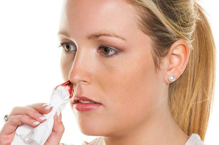 Những nguyên nhân phổ biến nhất gây ra tình trạng đau đầu chảy máu cam là gì?