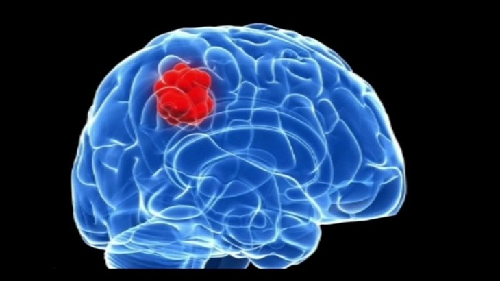 Hiện tượng đau nửa đầu phía sau bên trái kèm theo triệu chứng ù tai có thể báo hiệu người bệnh có u não