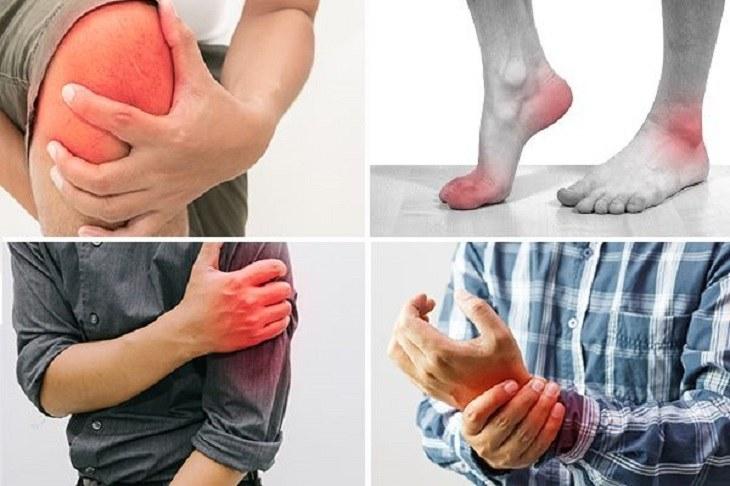 Đau nhức xương khớp tê bì chân tay khiến người bệnh vô cùng khó chịu