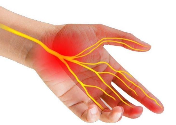 Hội chứng ống cổ tay là nguyên nhân bị tê tay