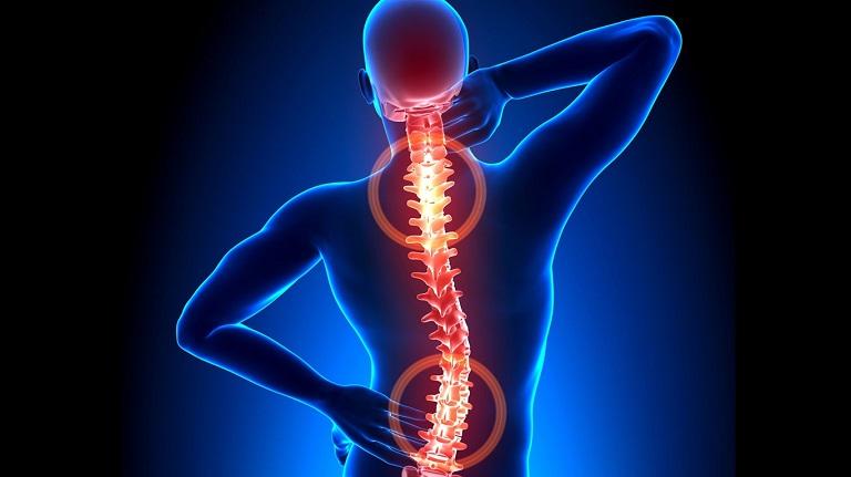 Lệch đĩa đệm phổ biến nhất ở vùng cột sống cổ và thắt lưng