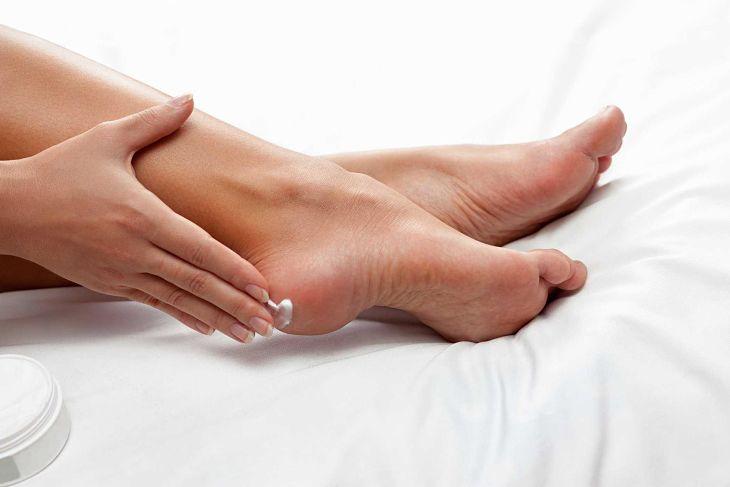 Người bệnh có thể sử dụng thuốc bôi trị á sừng ở chân