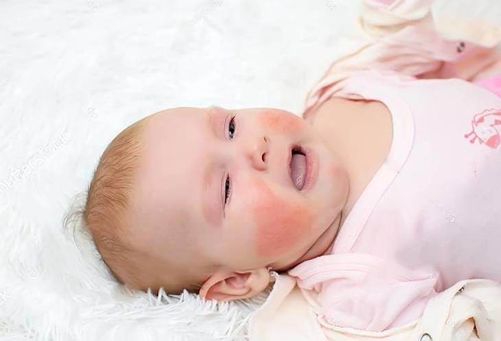 Viêm da cơ địa là căn bệnh da liễu thường gặp ở trẻ nhỏ