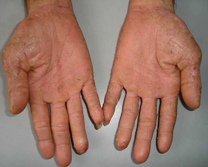 Khô da, nứt nẻ da là triệu chứng của bệnh á sừng liên cầu