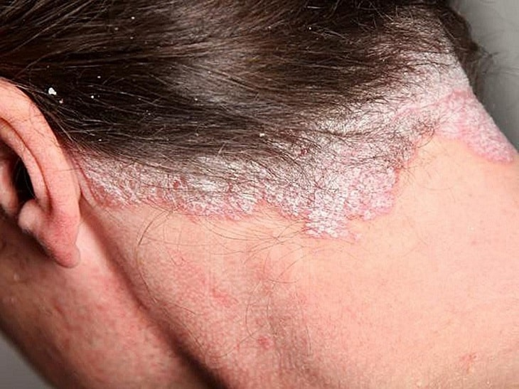 Vảy nến da đầu là một bệnh lý da liễu xảy ra khi tế bào da đầu tăng sinh bất thường