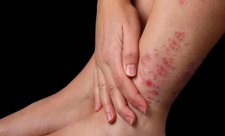 Vảy nến là căn bệnh da liễu gây bong tróc, ngứa ngáy khó chịu cho người bệnh