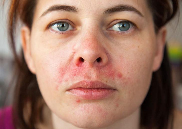 Viêm da dầu cánh mũi ảnh hưởng đến ngoại hình, tâm lý của người bệnh
