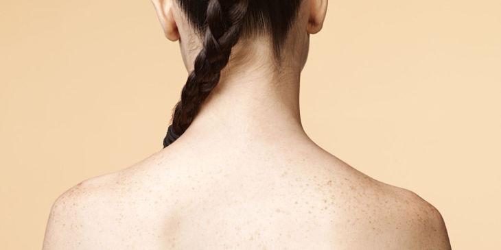 Viêm da tiết bã ở lưng gây ra nhiều triệu chứng khó chịu
