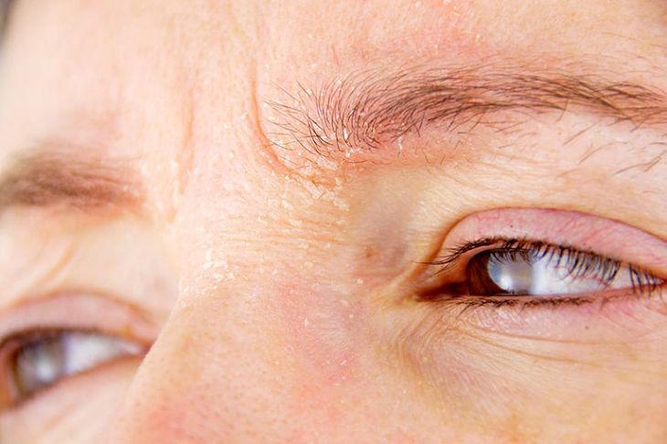 Hình ảnh viêm da tiết bã ở mặt
