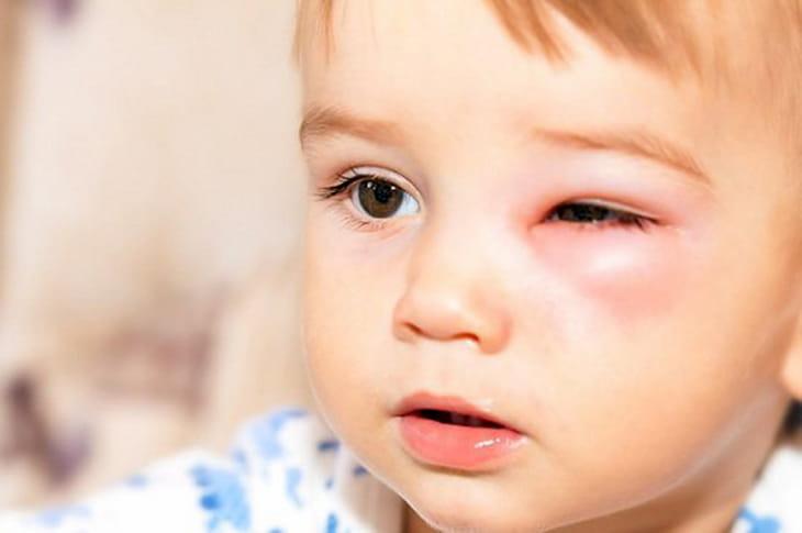 Tình trạng này có thể gây ra biến chứng ở mắt của trẻ